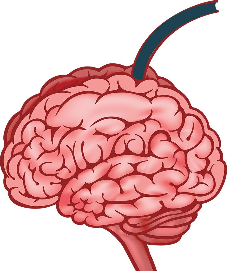 BrainFinal copy